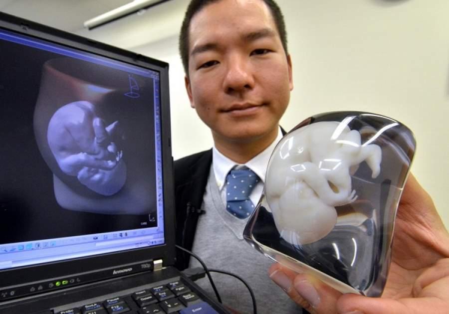 Все больше семей прибегают к 3D моделированию ребенка